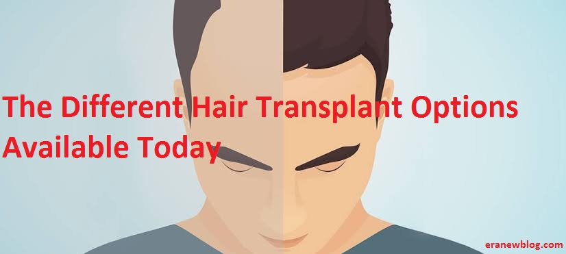 The Different Hair Transplant Options Available Today